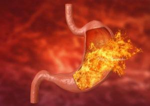 胃酸の救済のための家庭薬
