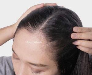 薄毛を止めるための自然療法
